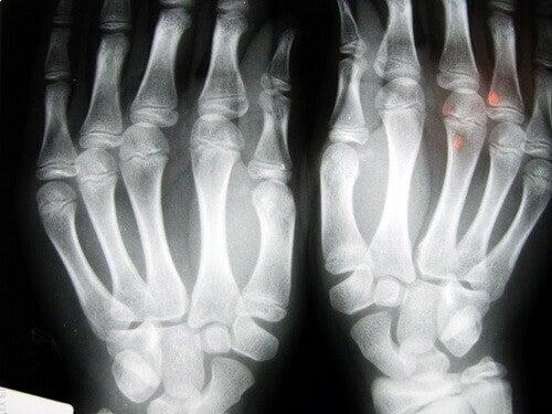 osteoartrit röntgen