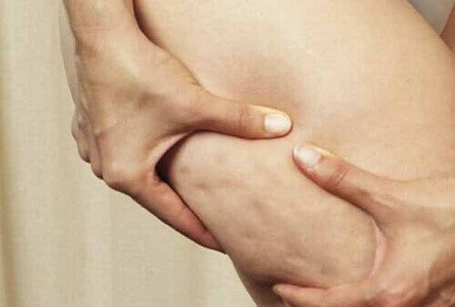 vücut-selüliti