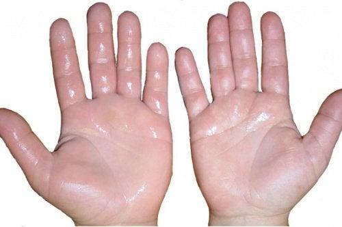 Şişmiş Eller İçin 6 Ev Yapımı Tedavi