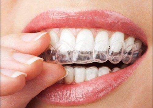 Diş Gıcırdatma ve Çene Sıkmaya 4 Çözüm