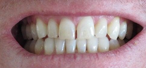 diş gıcırdatma çene sıkma