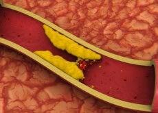 kolesterol-2