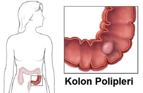 kolon-polipleri