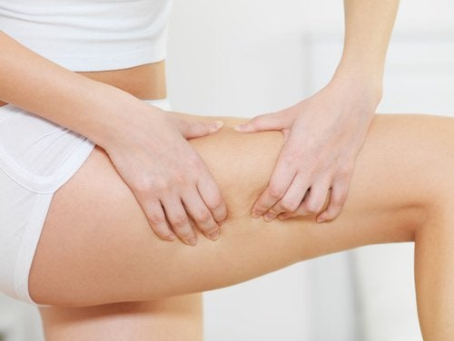 selülitli bacak