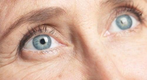 4-göz-kırışıklığı