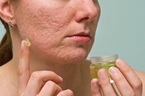 akne-jel-tedavi