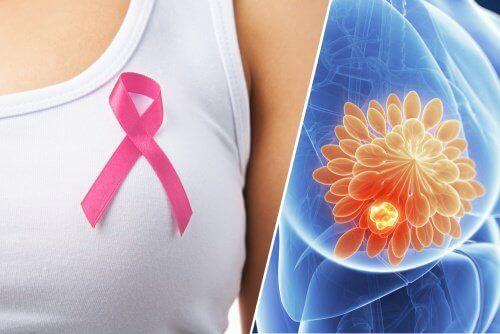 Meme Kanseri Belirtileri: 10 Uyarıcı İşaret