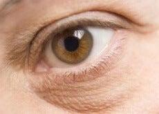 göz altı torbaları 1