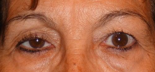 Göz Kapağı Sarkması İçin Doğal Çözümler