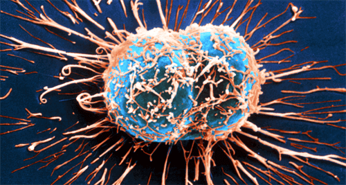 kanser hücres