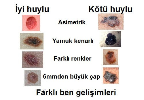 melanom işaretleri