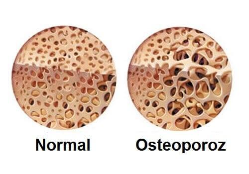 Osteoporoz ile Menopoz Döneminde Mücadele