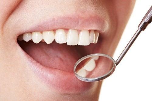 Diş Plağı İçin Evde Uygulayabileceğiniz Yöntemler