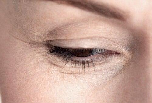 göz kırışıklığı 1