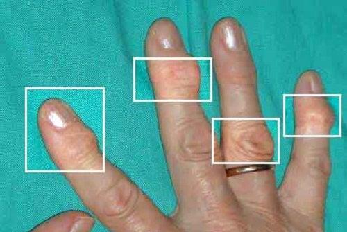 Artrite İyi Gelen Doğal Tedaviler ve Alternatif Yöntemler
