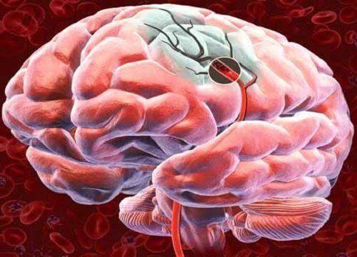 beyin kan akışı