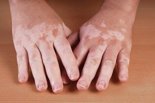vitiligo el