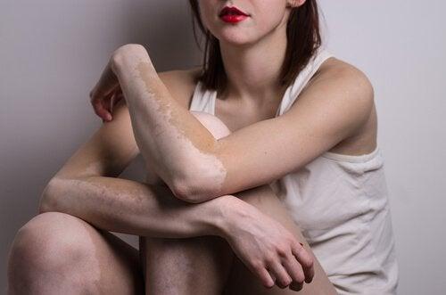 vitiligo kol