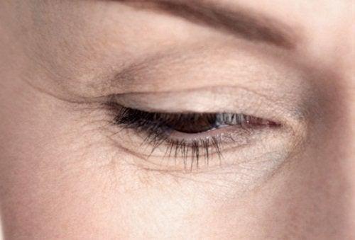 göz kırışıklıkları