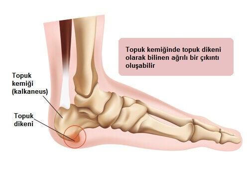 topuk-ağrısı-çizelgesi
