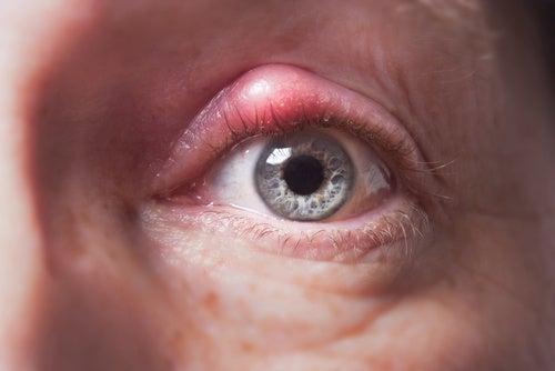 Göz Kapağındaki Arpacık ile Savaşmak İçin Doğal Tedaviler