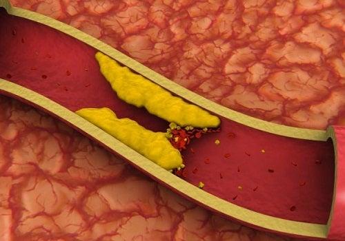 damar içinde biriken yağlar