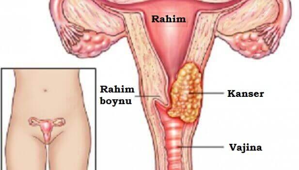rahim-kanseri