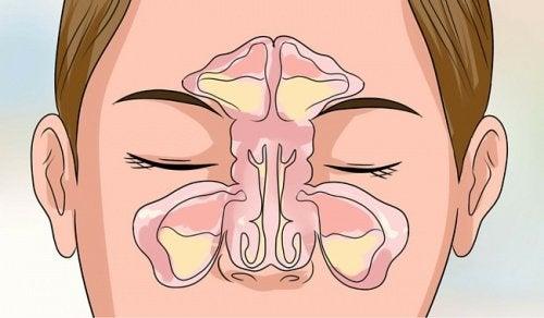 Tıkalı Burnu Açmak İçin 6 Öneri