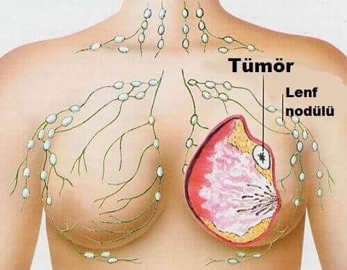 göğüs kanseri ile ilgili görsel sonucu
