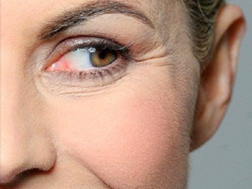 göz altı kırışıklıkları