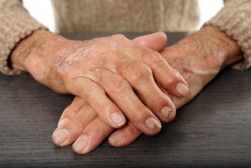 kırışık eller