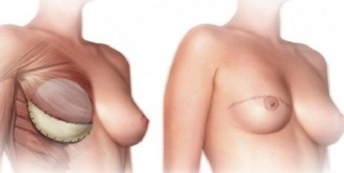 mastektomi ameliyatı