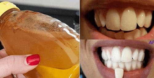 Tamamen Doğal Bir Malzeme ile Diş Beyazlatma