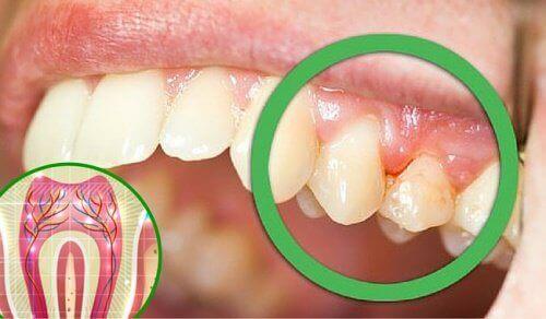 Diş Ağrısına Yol Açabilecek 6 Neden