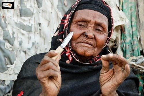 kadın sünneti uygulaması
