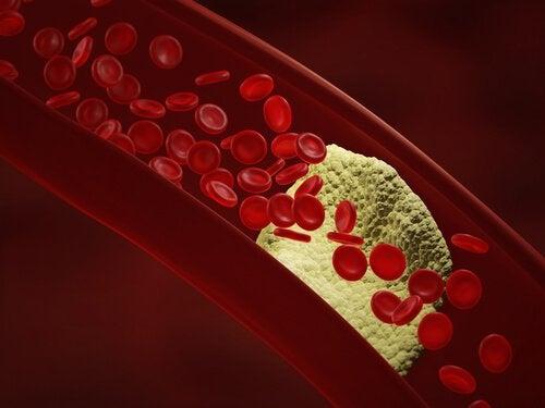 damardaki kolesterol