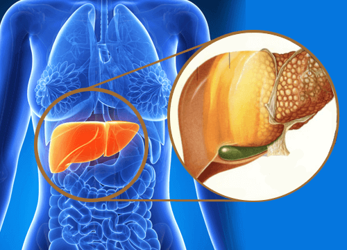 Karaciğerde Toksin Birikimi Olduğunun 9 İşareti
