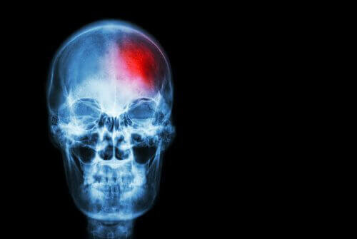 Beyin Kanaması Belirtileri Hakkında Bilmemiz Gerekenler