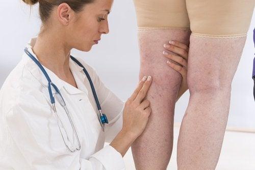 ödemli bacaklara tedavi