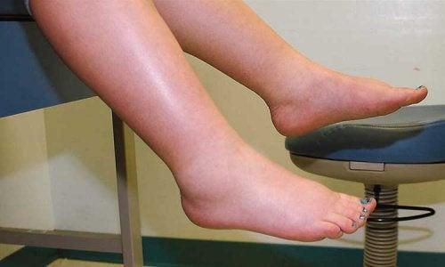 şişmiş ayaklar