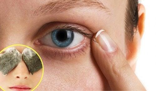 Göz Altındaki Koyu Halkalar için 5 Çözüm