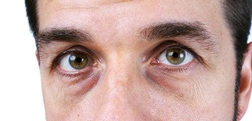 Gözlerin Altındaki Koyu Halkalar için 4 Doğal Çözüm