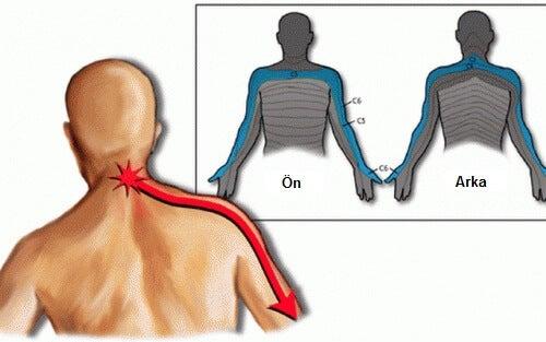 boyun ve kol ağrısı
