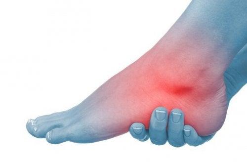 Şişmiş Ayaklar ve Ayak Bilekleri için 6 Doğal Reçete