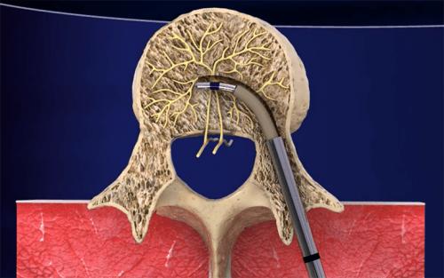 intracept