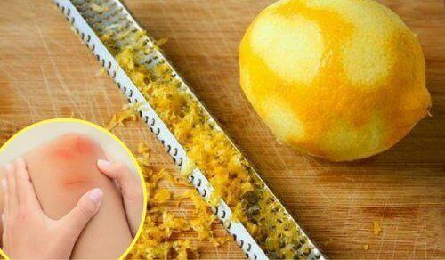 Eklem Ağrıları İçin Limon Kabuğunun Faydaları