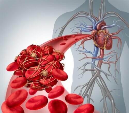 tromboz ve emboli