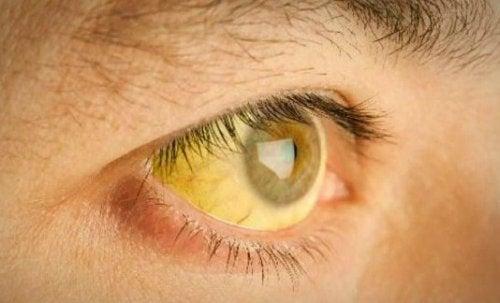 sarı göz