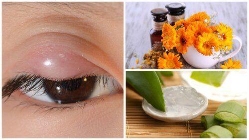 7 Doğal Tedavi İle Arpacığı Rahatlatın