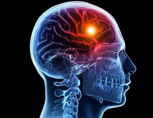 Beyin Felci Öncesinde Vücudun Verdiği 8 Uyarı